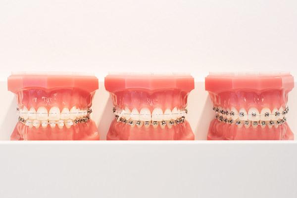 Feste Zahnspange Sanft